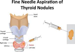 biopsy of the thyroid picture 15
