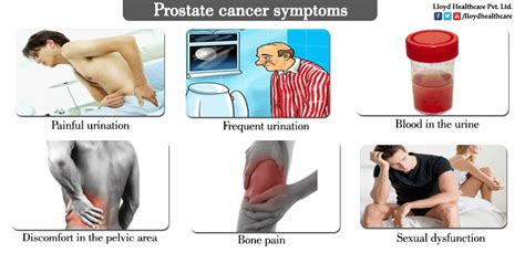 prostate cancer treatments picture 2