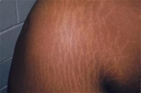 cause of stretch marks on shoulders picture 3