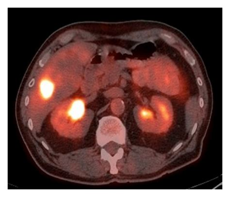 resection liver metastases colon cancer picture 7