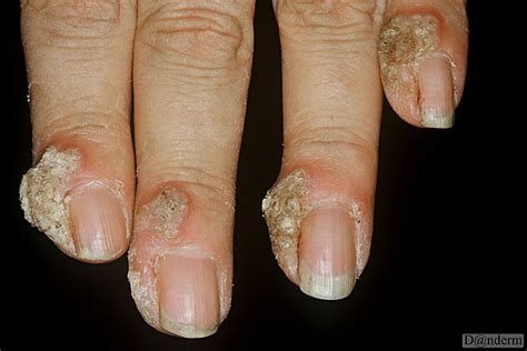 about genital warts picture 3