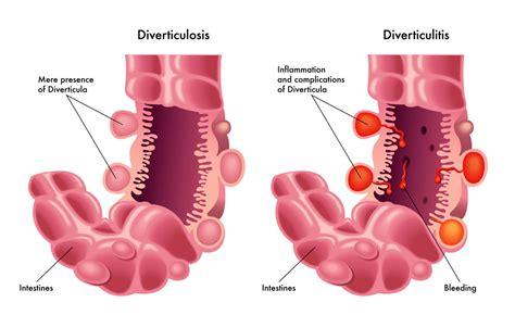 colon polyups picture 6