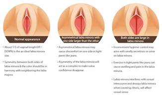 what causes vagina lips to stretch picture 13