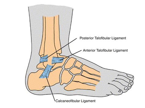 lisfranc joint picture 13