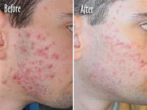 acne photo therapy picture 1