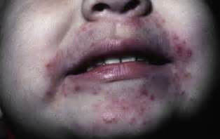 treatment for yeast rash under 's chin picture 1