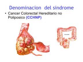 reseacrh article on colon cancer picture 10