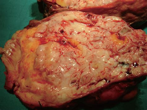 what are fatty liver cysts picture 1