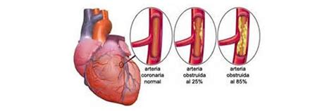 Angina high blood pressure picture 14