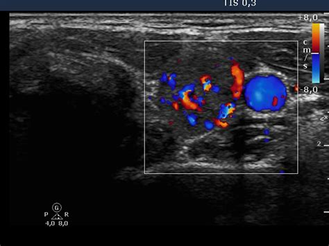 increased blood flow in thyroid nodule picture 2