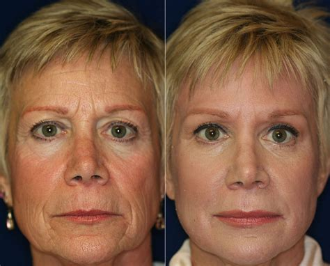 women before and after aging picture 9
