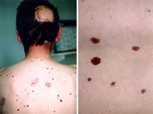 dysplastic cells skin picture 5