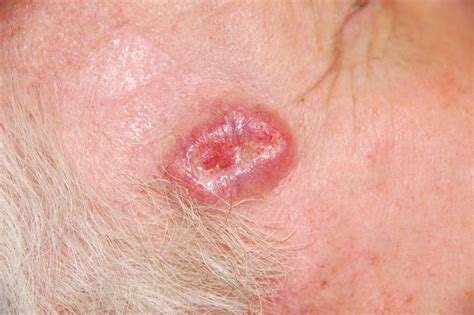 causes of body hair loss picture 11