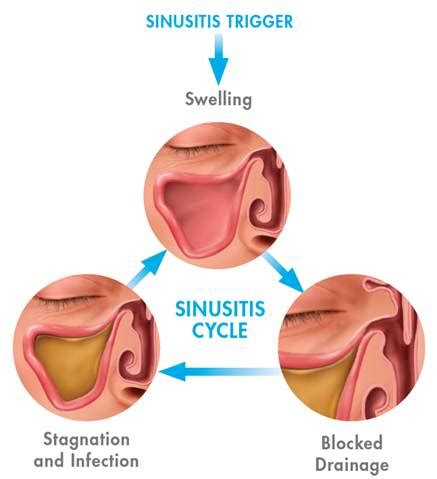 can sinus infections cause boils picture 3