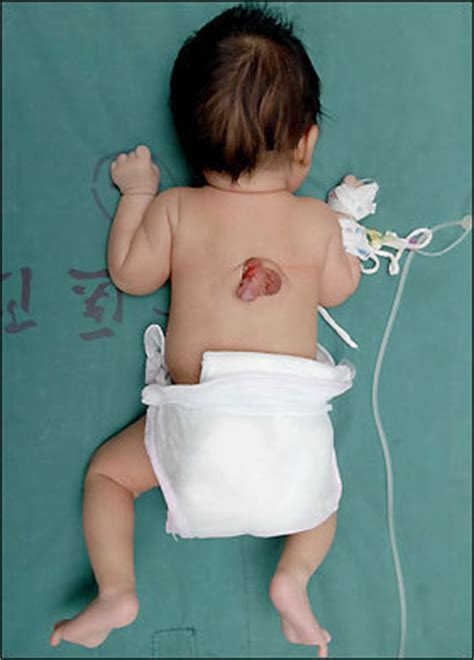 baby picture long penis picture 7