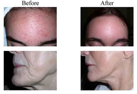 clearlight acne treatment picture 6