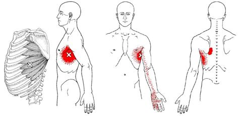 back pain relief picture 11