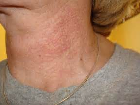 about skin rashes on the neck area picture 1