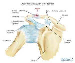 acromioclavicular joint picture 9
