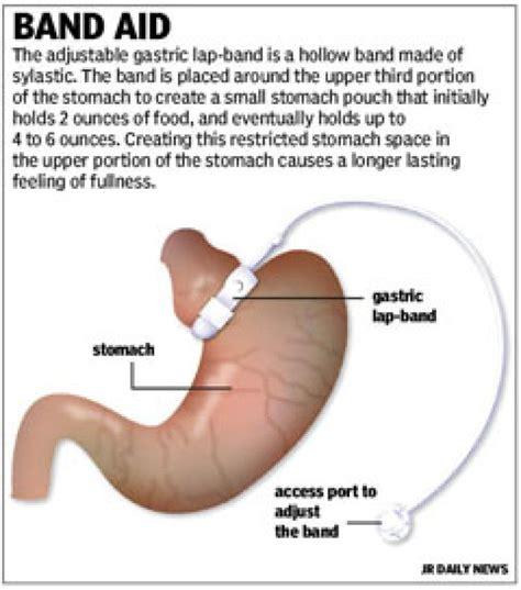 weight loss band surgery picture 7