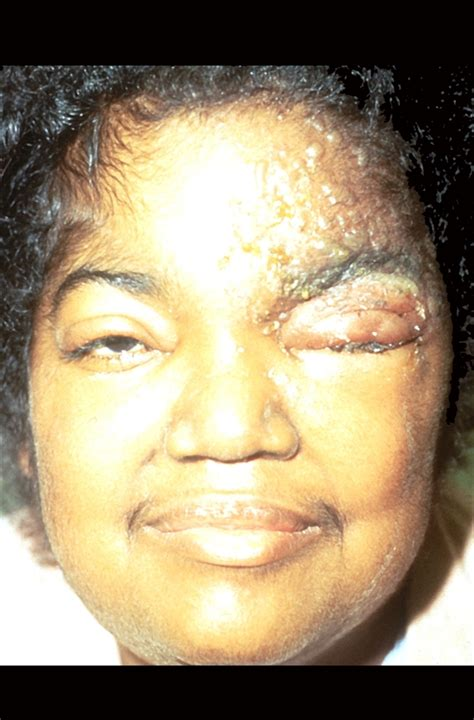 face herpes pictures picture 9