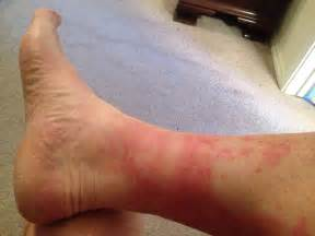 blotchy skin on ankles picture 3