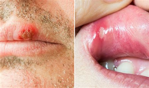 does the sores of herpes heal within a picture 6