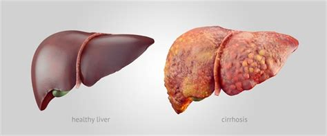 what are common diseases of the liver picture 15