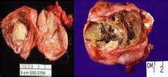 celiac disease and thyroid nodule picture 6