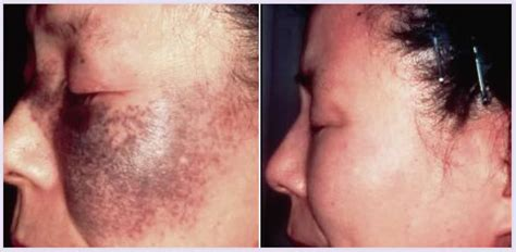 creams for acne in african americans picture 6