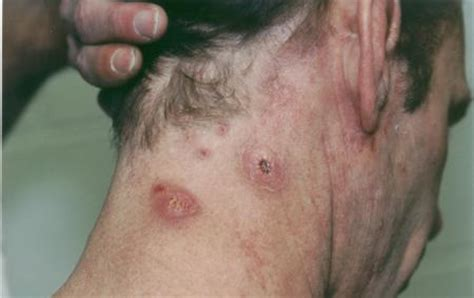 dry skin boils between legs picture 15
