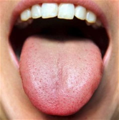 chinese medicine for hpv vaginal warts picture 6