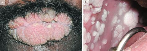 genital warts chinese medicine picture 10