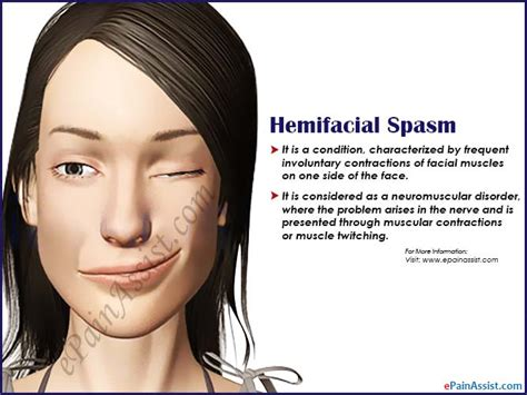 nerves lower lip spasm picture 3