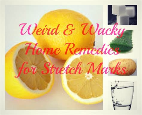 stretch mark remedy picture 3