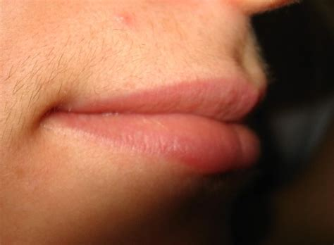 shaving lips picture 7