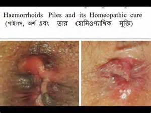 hemorrhoid treatment picture 5