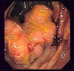 colon suregy picture 18