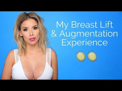 my husband's breast enhancement picture 1