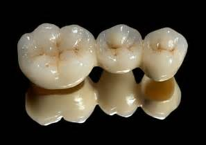 crowns for teeth picture 14