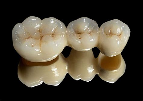 crown for teeth picture 13