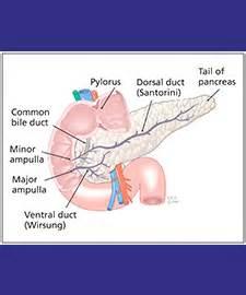 pancreatic divisum diet picture 2