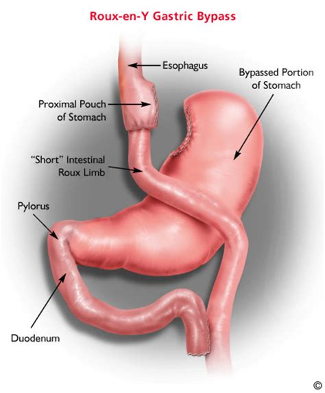 will gastric byp work if i'm weight loss picture 6