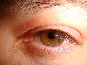 dry skin around eyes since hysterectomy picture 6