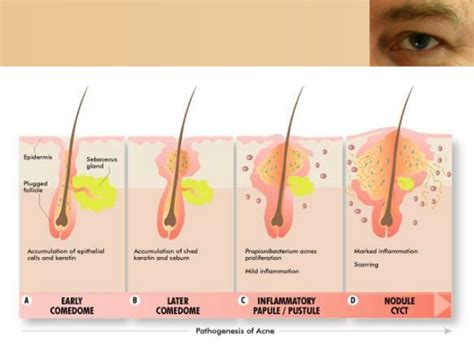 acne scarring pictures picture 7