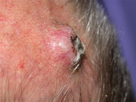 prognisis in squamous skin cell carcinoma picture 10