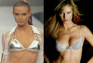 before after breast saggy augmentation pictures picture 2