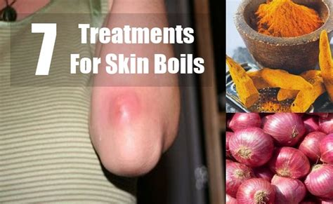 treatment for skin boil picture 1