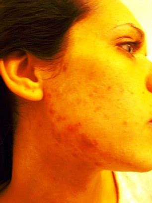 movie called acne picture 1