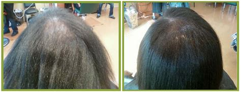 fenugreek and hair growth before and after picture 7